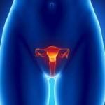 Nadżerka to chorobowy stan w macicy